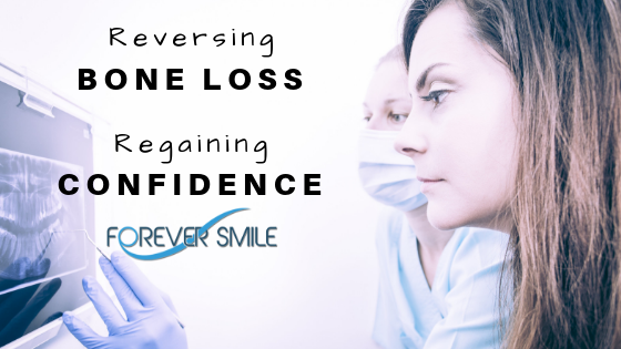 Reversing Your Bone Loss, Regaining Your Confidence