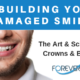 Rebuilding Your Damaged Smile With Crowns And Bridges
