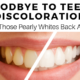 Goodbye to Teeth Discoloration